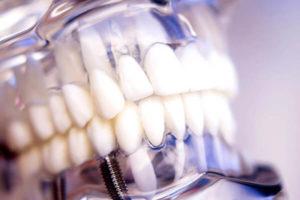 Edremit Diş Hekimi İmplant