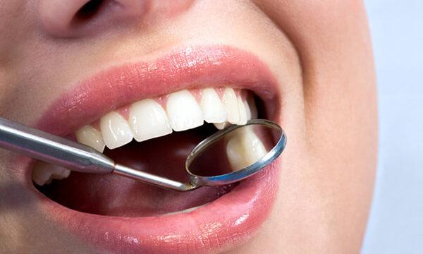 Edremit Beyaz Diş Dolugus